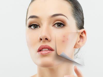 acne_padin